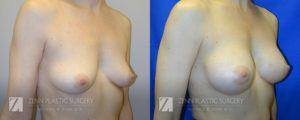 Breast Augmentation Before and After Photos Patient 8.1