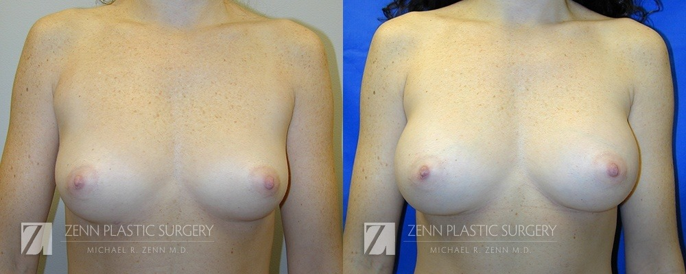 Breast Augmentation Before and After Photos Patient 9
