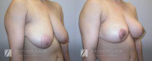 Raleigh Breast Lift Before and After Photos Patient 1.1