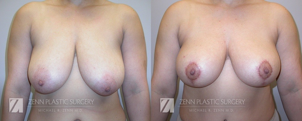 Raleigh Breast Lift Before and After Photos Patient 1