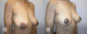Raleigh Breast Lift Before and After Photos Patient 2.2