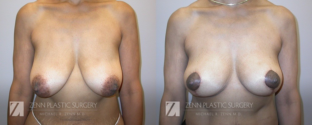 Raleigh Breast Lift Before and After Photos Patient 2