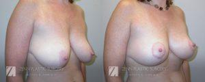 Raleigh Breast Lift Before and After Photos Patient 3.1