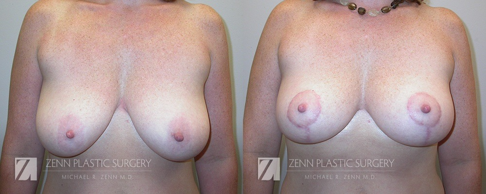 Raleigh Breast Lift Before and After Photos Patient 3