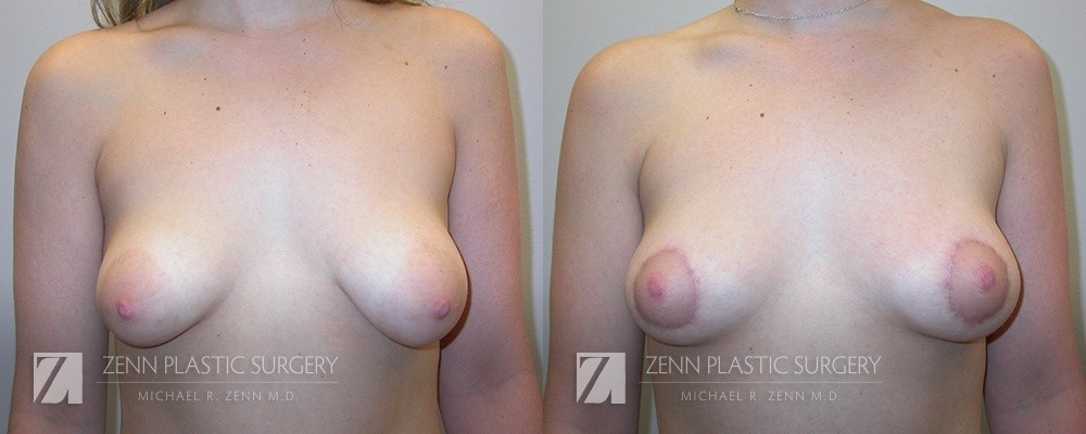 Raleigh Breast Lift Before and After Photos Patient 4