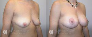 Breast Lift with Augmentation Before and After Patient 10.1
