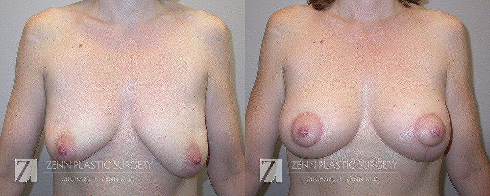 Raleigh Breast Lift with Augmentation Patient 11