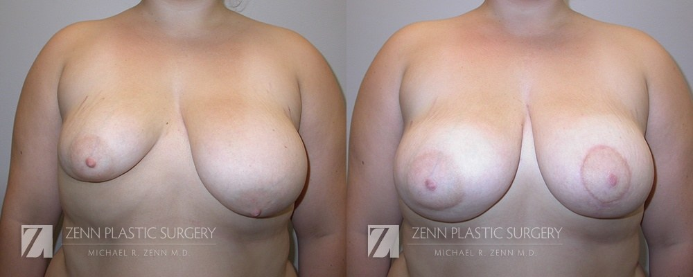 Raleigh Breast Lift with Augmentation Patient 12
