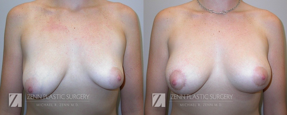 Raleigh Breast Lift with Augmentation Patient 13