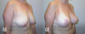 Breast Lift with Augmentation Before and After Patient 2.1