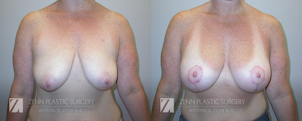 Breast Lift with Augmentation Before and After Patient 2