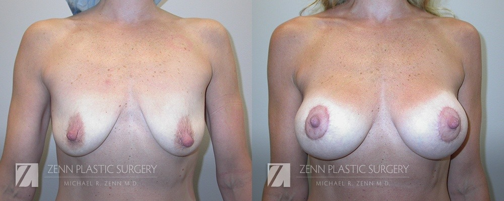 Breast Lift with Augmentation Before and After Patient 3