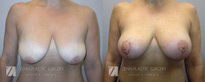Breast Lift with Augmentation Before and After Patient 4