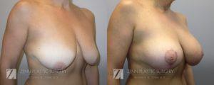Breast Lift with Augmentation Before and After Patient 4.1