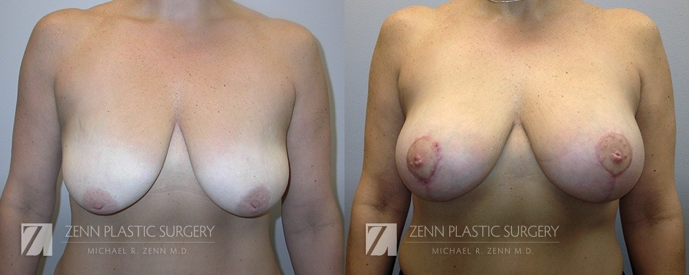 Raleigh Breast Lift with Augmentation Patient 4