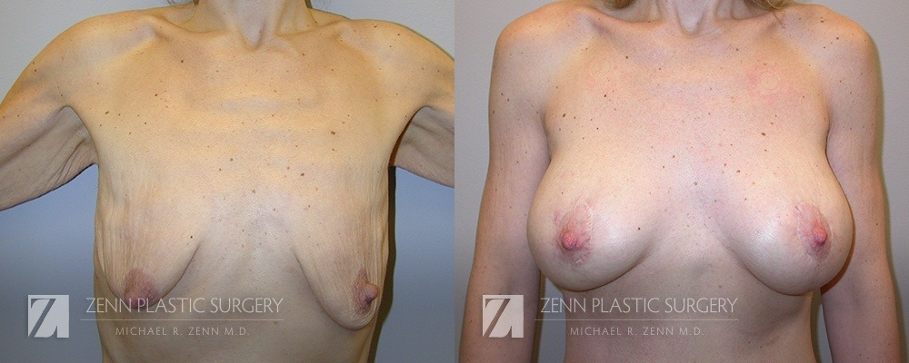 Raleigh Breast Lift with Augmentation Patient 5