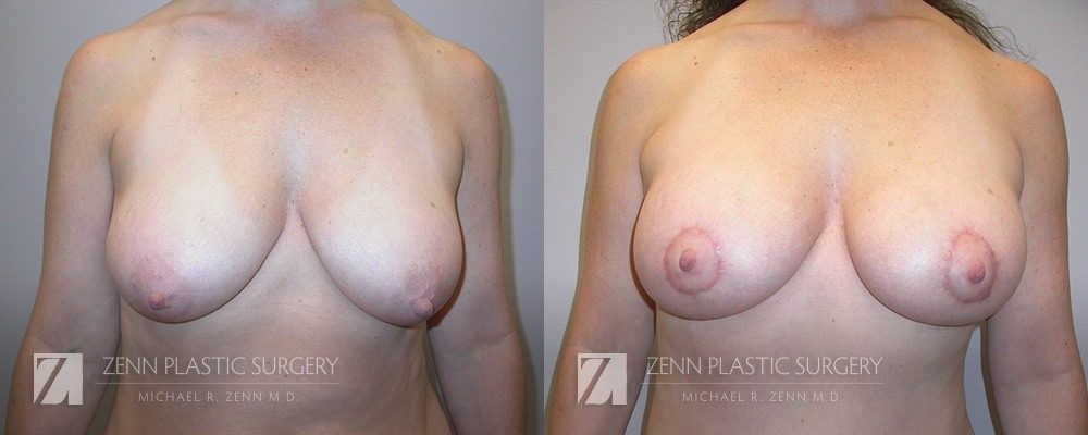 Breast Lift with Augmentation Before and After Patient 6