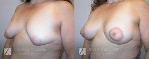 Breast Lift with Augmentation Before and After Patient 7.1