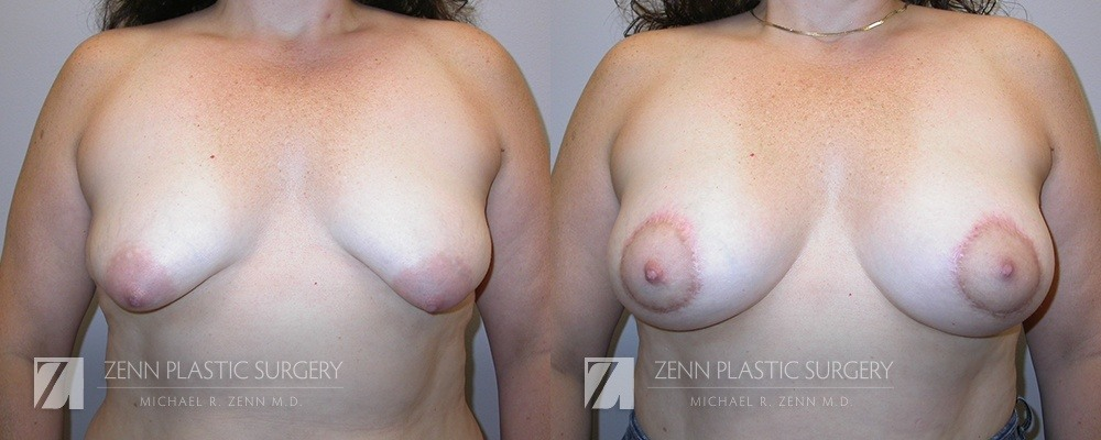 Raleigh Breast Lift with Augmentation Patient 7