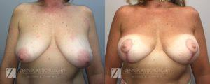Breast Lift with Augmentation Before and After Patient 8