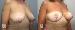 Breast Lift with Augmentation Before and After Patient 8.1