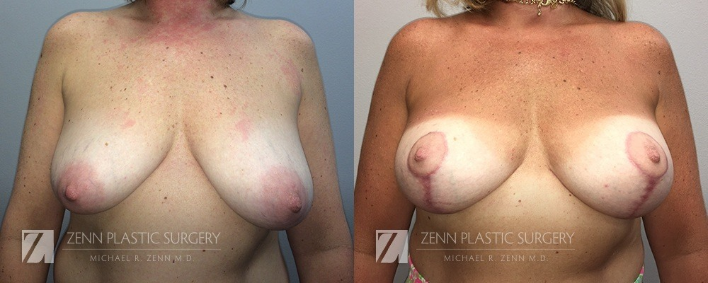 Raleigh Breast Lift with Augmentation Patient 8