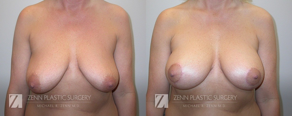 Breast Lift with Augmentation Before and After Patient 9