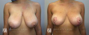 Raleigh Breast Reduction Patient 1.jpg