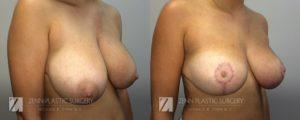 Raleigh Breast Reduction Patient 1.1