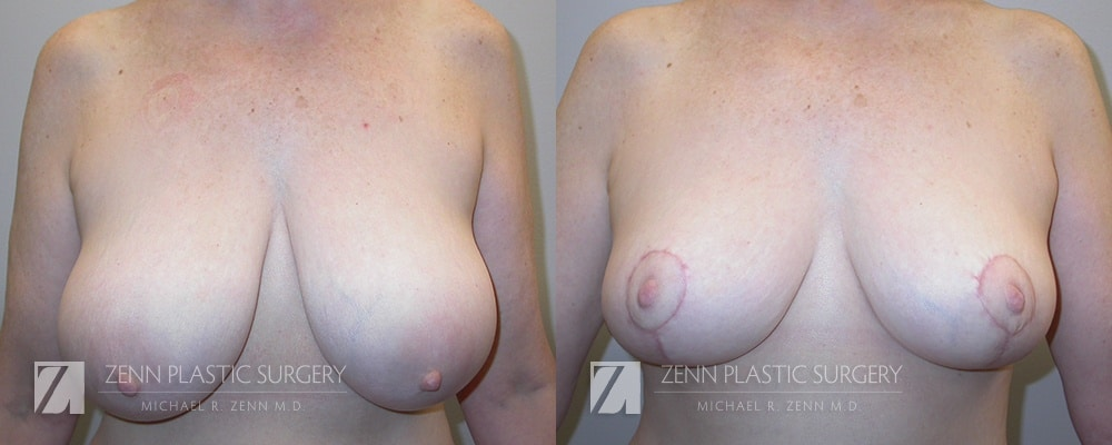 Raleigh-Breast-Reduction-Patient-3