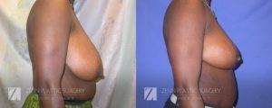 Raleigh Breast Reduction Patient 4.1