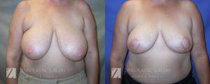 Raleigh Breast Reduction Patient 6