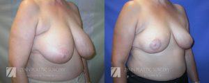 Raleigh Breast Reduction Patient 6.1
