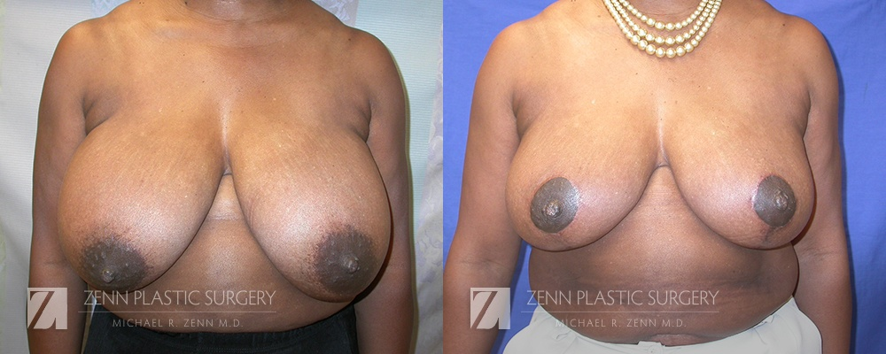 Raleigh Breast Reduction Patient 7