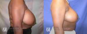 Raleigh Breast Reduction Patient 7.1