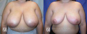 Raleigh Breast Reduction Patient 8