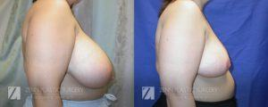 Raleigh Breast Reduction Patient 8.1