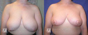 Raleigh Breast Reduction Patient 9