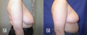 Raleigh Breast Reduction Patient 9.1