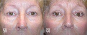 Raleigh Brow Lift Before and After Photos Patient 1