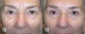 Brow Lift Before and After Photos Patient 9
