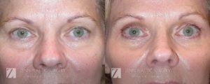 Blepharoplasty Eyelid Surgery and Brow Lift Before and After Photos Patient 12