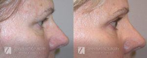 Blepharoplasty Brow Lift Before and After Photos Patient 12.1