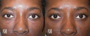 Raleigh Brow Lift Before and After Photos Patient 6.1