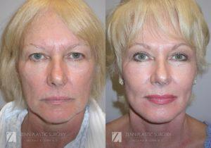 Facelift Before and After Photos Patient 2