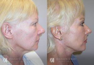 Raleigh Facelift Before and After Photos Patient 1.1