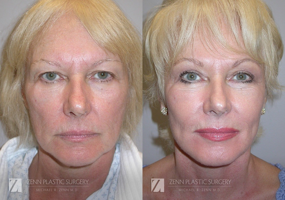 Raleigh Facelift Before and After Photos Patient 1
