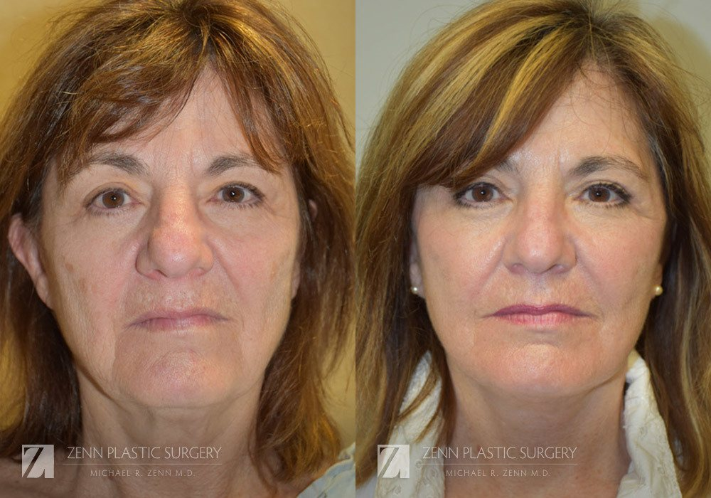 Facelift Before and After Photos Patient 3