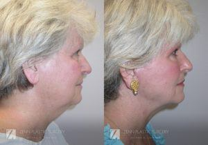 Raleigh Facelift Before and After Photos Patient 2.1