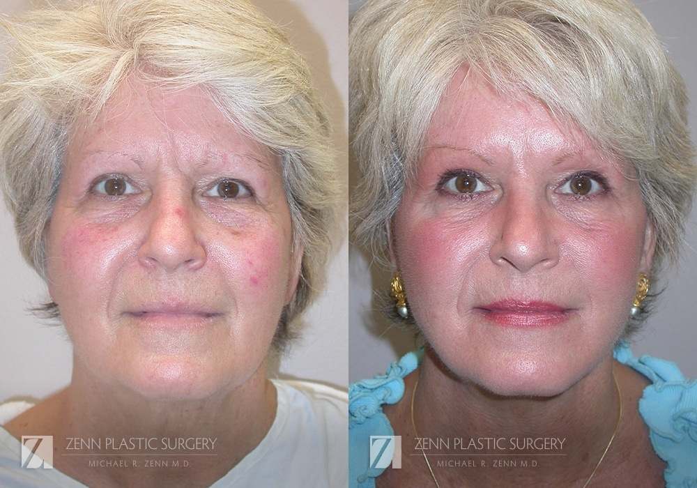 Facelift Before and After Photos Patient 5